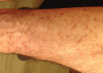 Как проявляется аллергия на стиральный порошок у детей и взрослых?