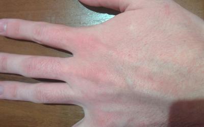 Аллергия фото сыпи чешется