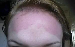 аллергия на шампунь у взрослого