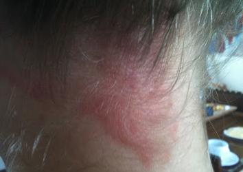 Аллергия на шампунь: причины развития, лечение и профилактика