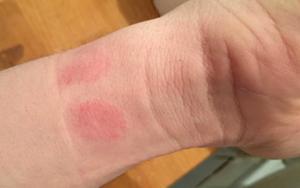 аллергия на ремешок от часов