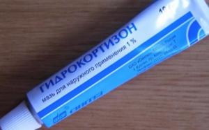 гидрокортизон от экземы