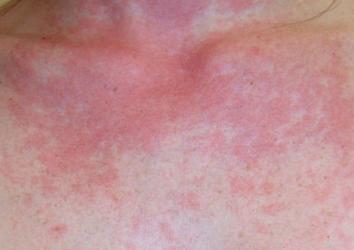 Может ли возникнуть аллергия от солнца?