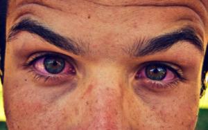 глаза красные и болят