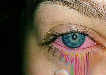 Что делать, если беспокоят красные глаза при аллергии?