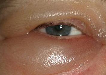 Чем себе можно помочь, если отекли глаза?