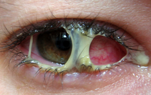 при аллергии закисают глаза