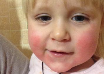Почему у малыша красные щеки и насколько это может быть опасно?