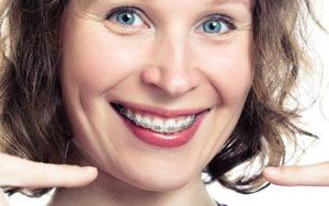 аллергия на керамические брекеты