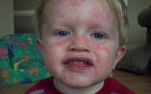 аллергия после антибиотиков у ребенка