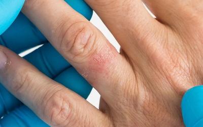аллергия на украшения фото